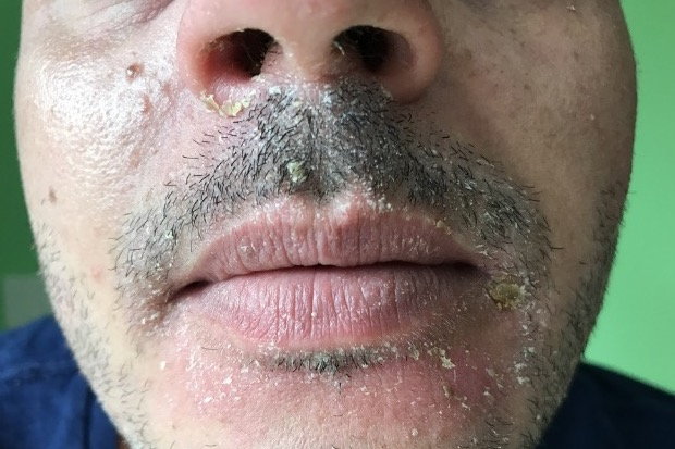 Dermatitis facial sebhorric photos 422