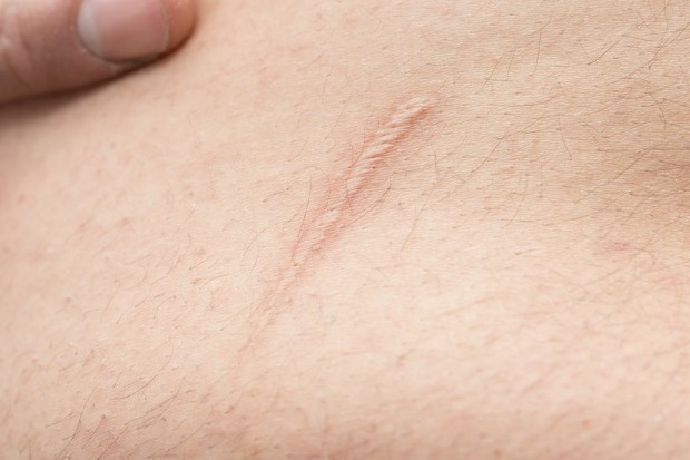 StudyPages - Effectiveness of Embrace Scar Therapy Device After Wound  Closure